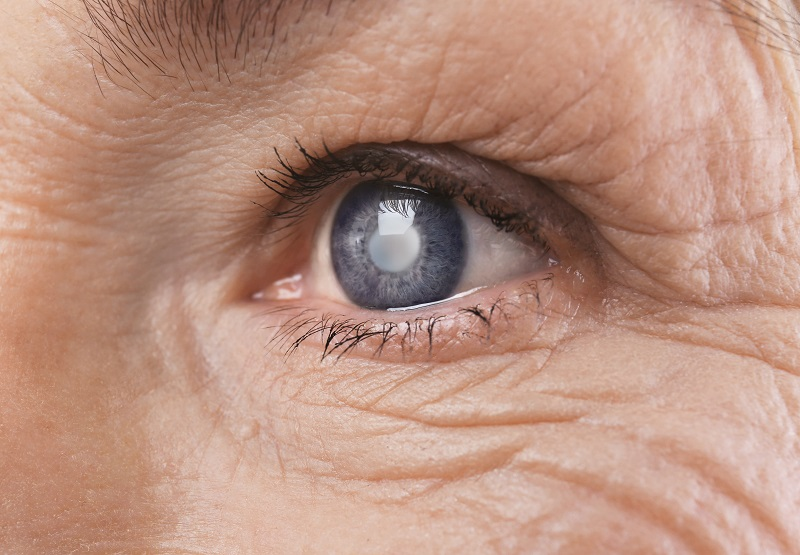 cataracts and eye aging